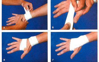Применение ортеза для лучезапястного сустава: виды фиксаторов, особенности ношения и ухода, возможные ограничения