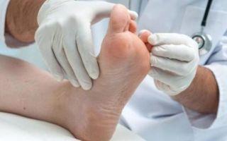 Как выявить и лечить остеопороз костей стопы: факторы риска развития, клинические признаки, методы обследования и терапии