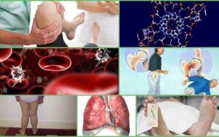 Остеомиелит: классификация заболевания, клиническая картина, диагностика и тактика лечения