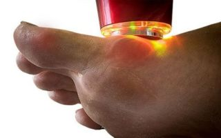 Основные методы лечения подагры на большом пальце ноги: медикаменты и народные рецепты, физиотерапия и правила питания
