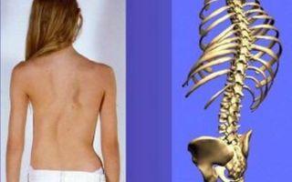 Особенности остеомиелита у детей: основные причины, сопутствующие симптомы, методы обследования и терапии