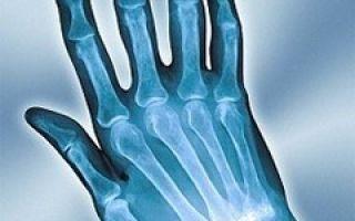 Инфекционный артрит у детей: механизм развития, характерные проявления, методы обследования и лечения