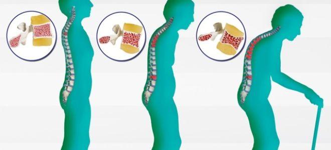 Особенности лечения остеопороза у пожилых женщин: виды заболевания, аптечные и народные средства, принципы диеты