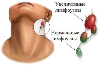 Тревожный симптом: могут ли болеть зубы при шейном остеохондрозе