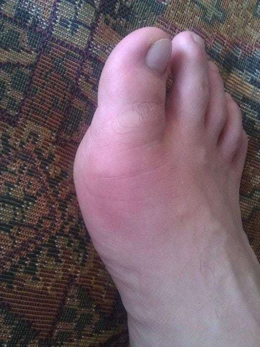 Как лечить воспаление сустава большого пальца ноги