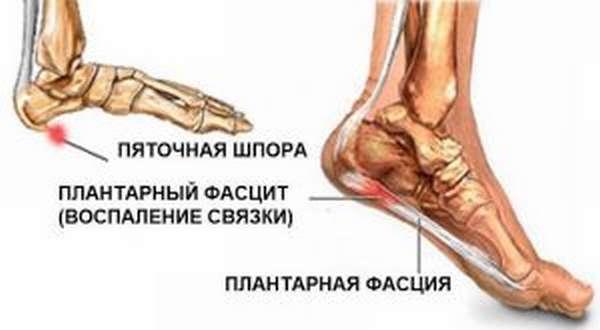 Как выбрать ортопедические стельки при пяточной шпоре